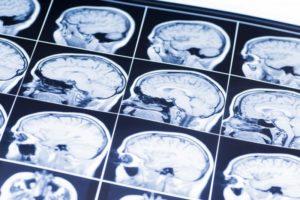 brain injury mri scan